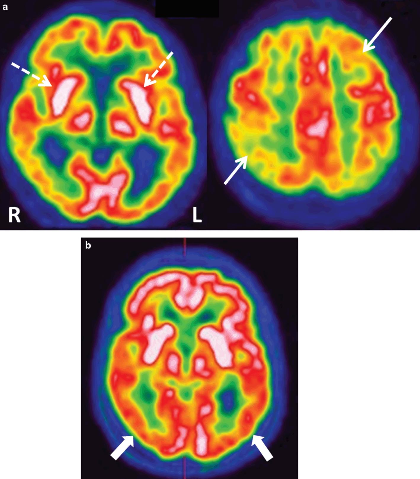 Parkinsonism (Chapter 17) - Imaging Acute Neurologic Disease