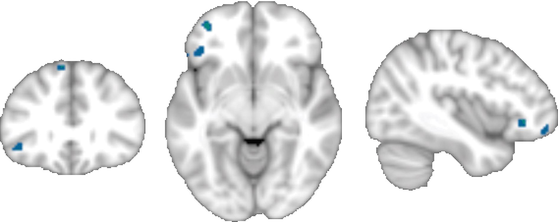 Neuroimaging of sleep disorders (Section 5) - Neuroimaging