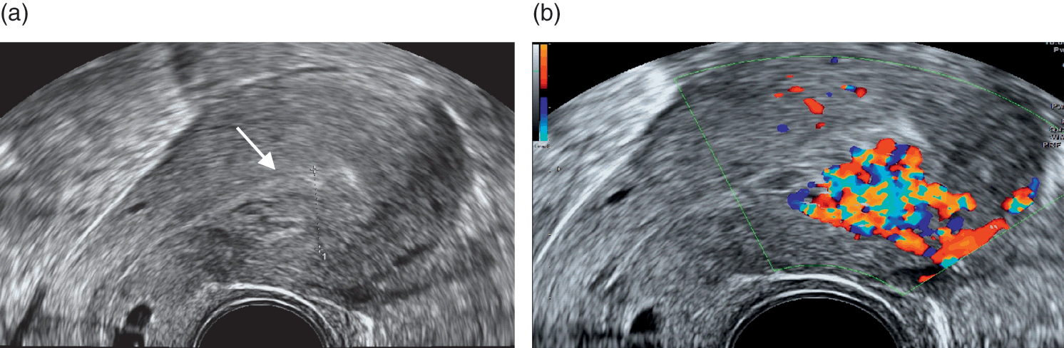 The role of ultrasound in early pregnancy after assisted
