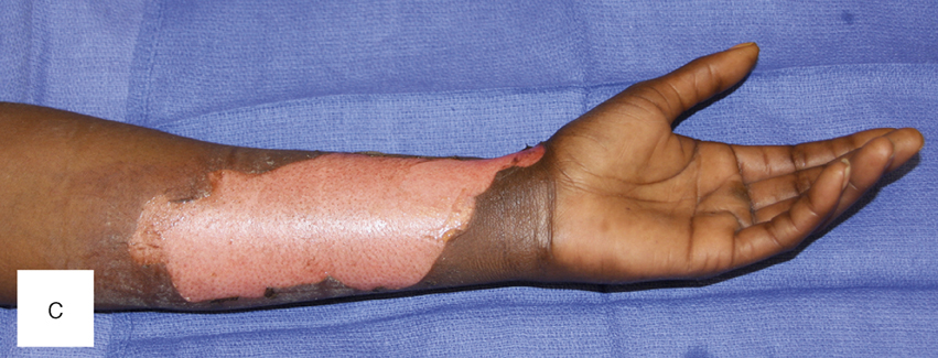 Burn Injuries (Chapter 8) - Color Atlas of Emergency Trauma
