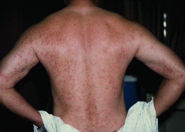 Rash (Chapter 35) - An Introduction to Clinical Emergency