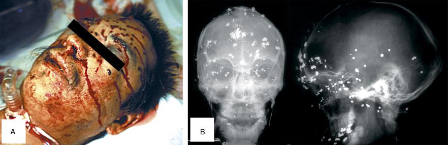 Skull fracture of basilar signs Basilar skull