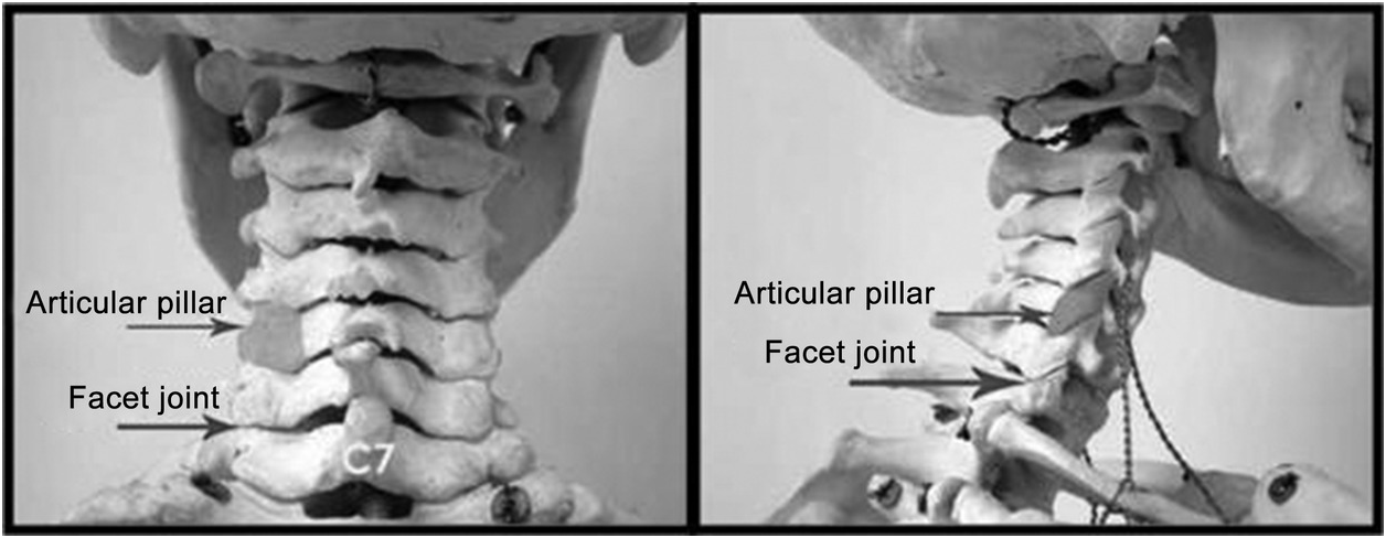 Spinal Disorders (Section 2) - Case Studies in Pain Management