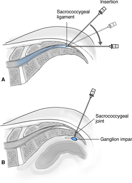 Interventionalpain management I: epidural, ganglion, and