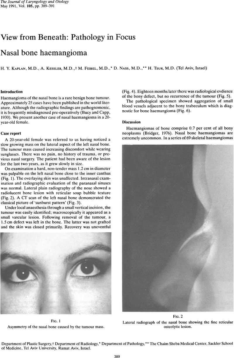 Nasal Bone Haemangioma The Journal Of Laryngology Otology