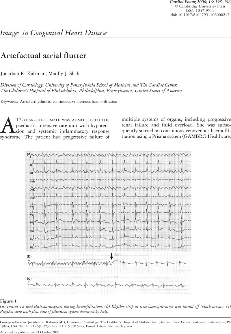 Artefactual atrial flutter | Cardiology in the Young