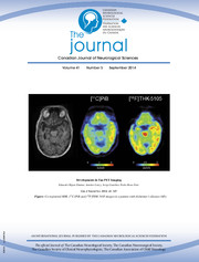 Canadian Journal of Neurological Sciences Volume 41 - Issue 5 -