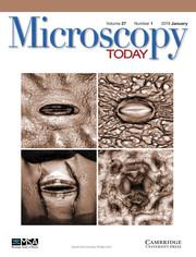Microscopy Today Volume 27 - Issue 1 -
